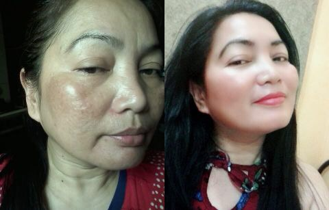 Skin magical rejuvenating set No.3 and No.2 Before and After