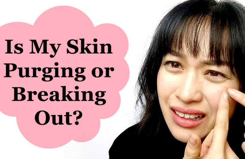 PURGING VS BREAKOUTS: WHEN TO DITCH YOUR SKINCARE