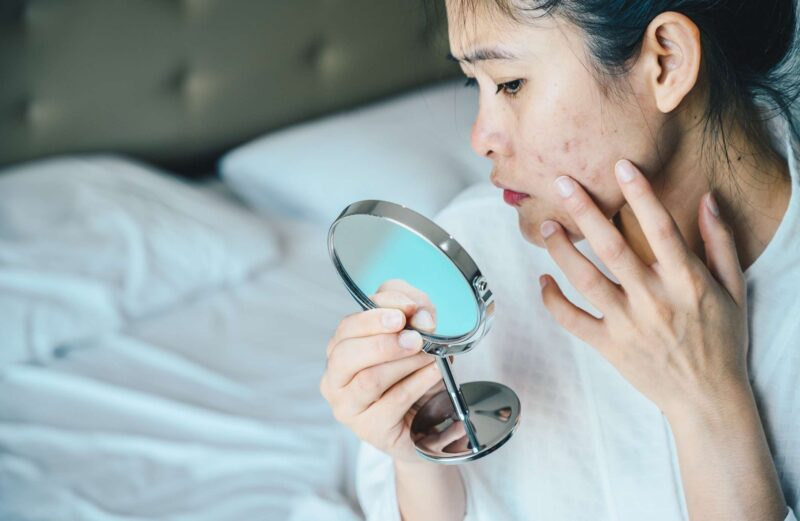 How Do Rejuvenating Set Treat pimples