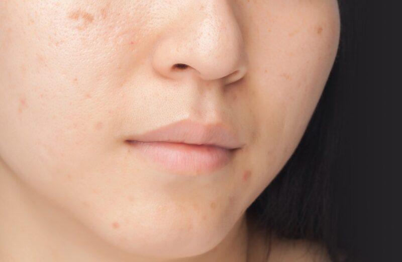 How Does Rejuvenating Set Treat Dark Spots?