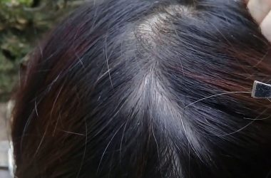 Does Pulling a White Hair Cause More White Hair To Grow?