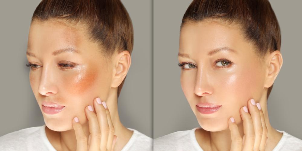 hyperpigmentation before after