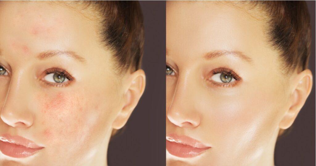 Skin Magical No.3 and No.2